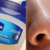 用「凡士林」去除鼻頭粉刺?這個步驟不能少