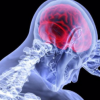 Stanford 醫學研究:COVID-19 病毒可能損及大腦